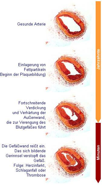 Arteriosklerose[1]