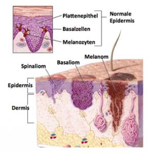 Abb.1: Hautkrebsarten
